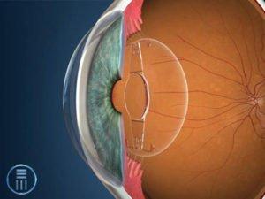 Accommodating IOL in eye