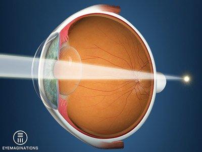 Diagram showing light focusing beyond the retina
