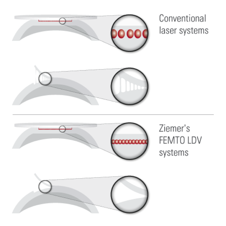Ziemer's FEMTO LDV systems compared to conventional laser systems